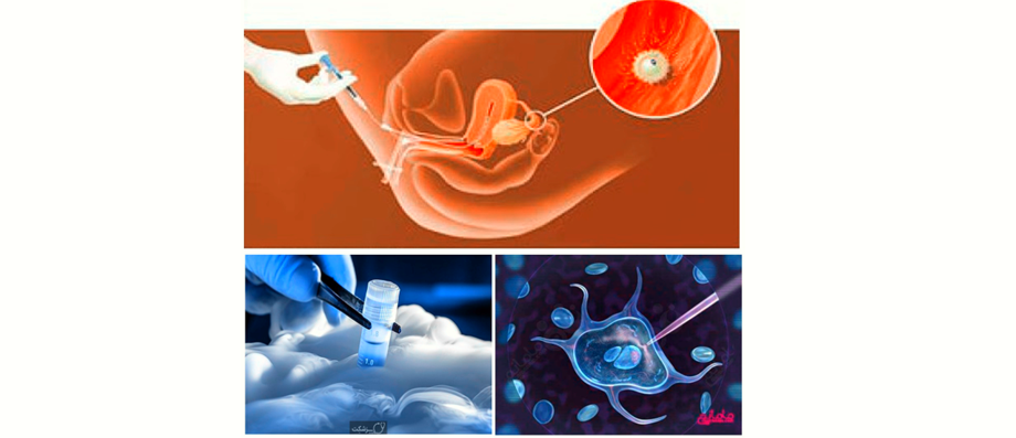 Evaluating Factors Affecting Reproductive Success by Intrauterine Fertilization: The Cases in Qom University Jihad Center, 2018-2019